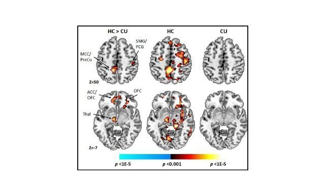 Cannabis Use Associates With Altered Cognitive Control