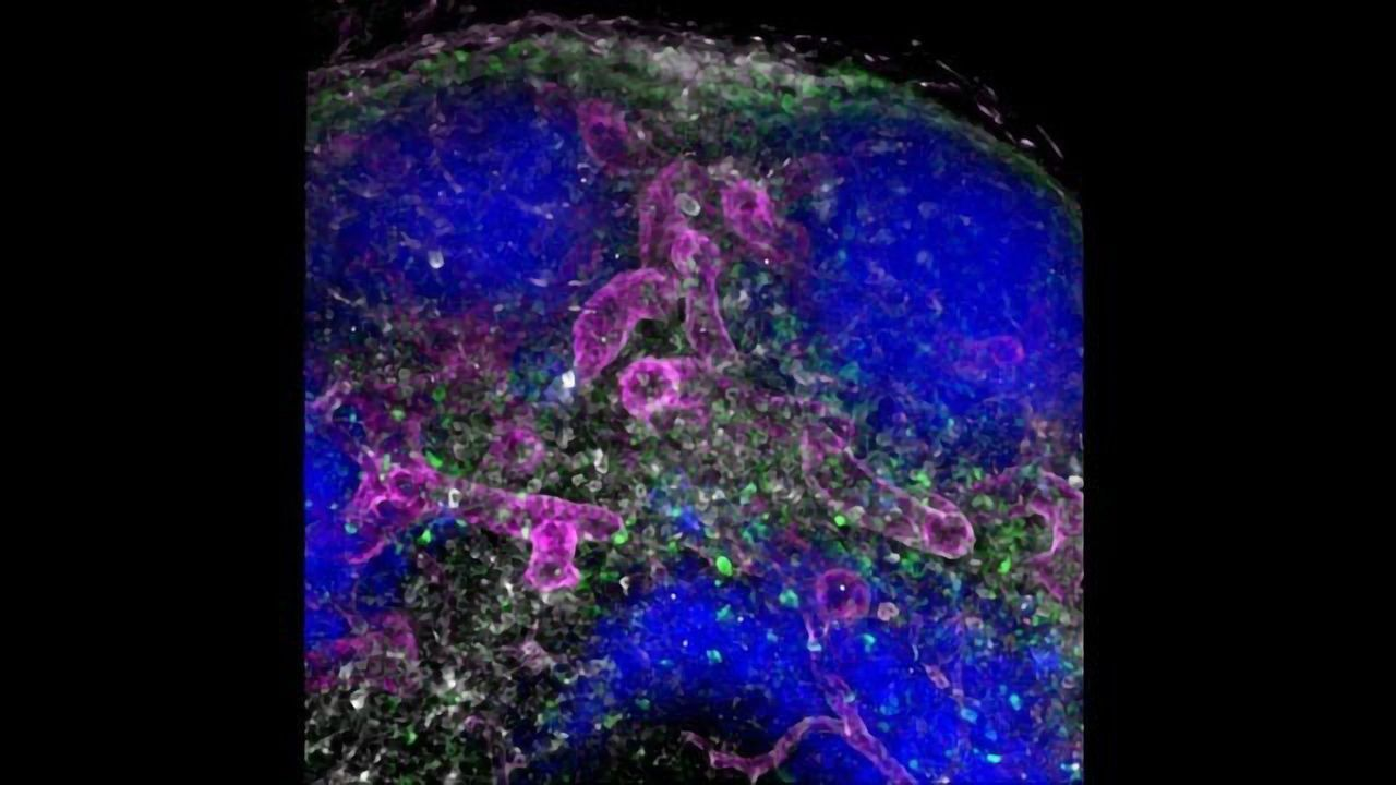 New Route Transports Administered Antibodies into Lymph Nodes in Seconds