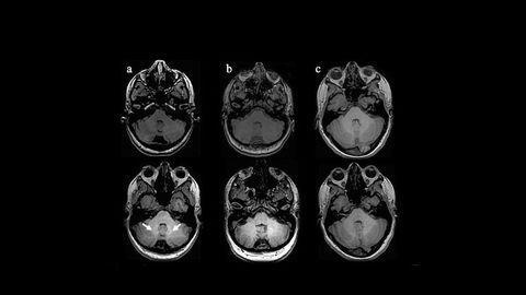Gadolinium Deposition Found in Early MS Brains