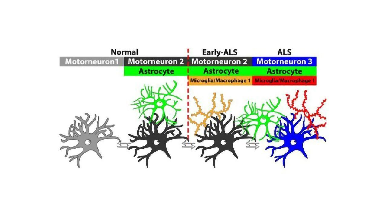 Unique Neuronal Populations Could Be Biomarkers for ALS