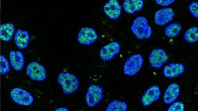 """Slug"" Keeps Breast Stem Cell Health in Check"