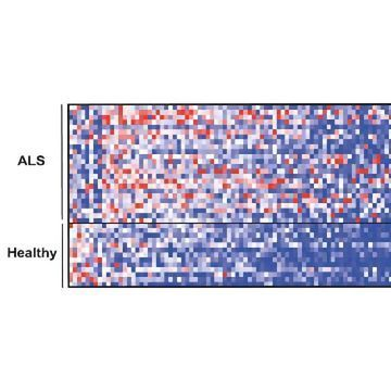 Intestinal Microbes May Have Role in ALS, Suggests Mouse Study