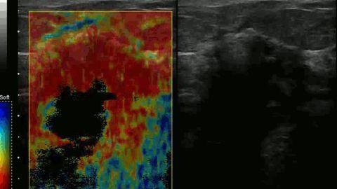 Algorithms Could Make Breast Cancer Diagnosis Easier