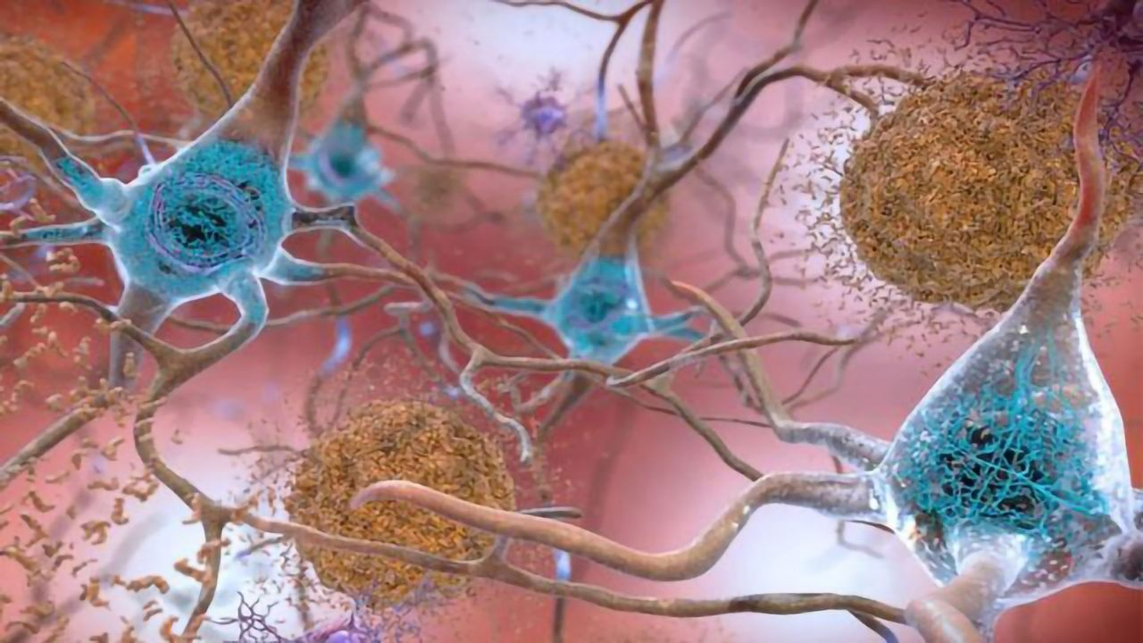 Mapping Protein-Gene Interactions in Alzheimer's Disease