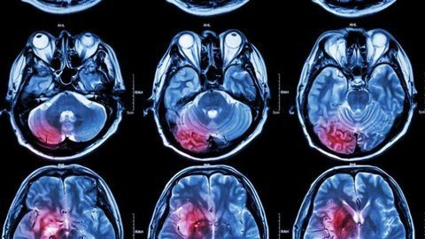 """Treatment Takes a """"BiTE"""" Out of Brain Cancer"""