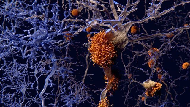 Electron Relationships in Alzheimer's Protein Found to Be