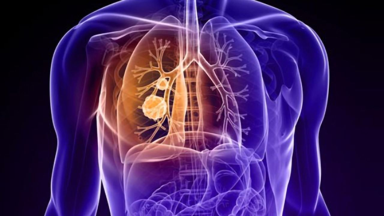 Two Drug Targets Discovered for Deadly Lung Cancer
