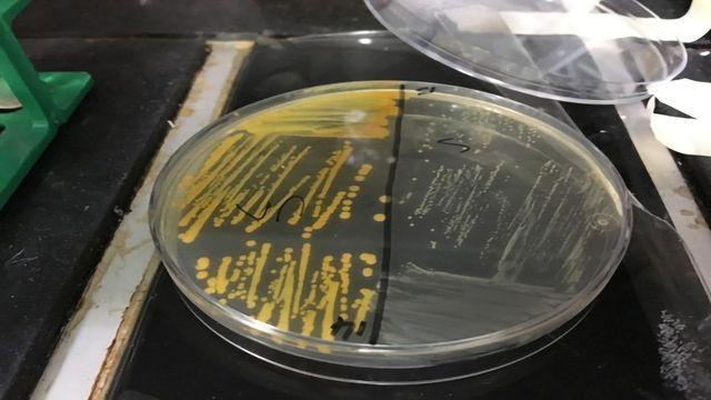 Cigarette Smoke Makes MRSA Superbug More Antibiotic-resistant