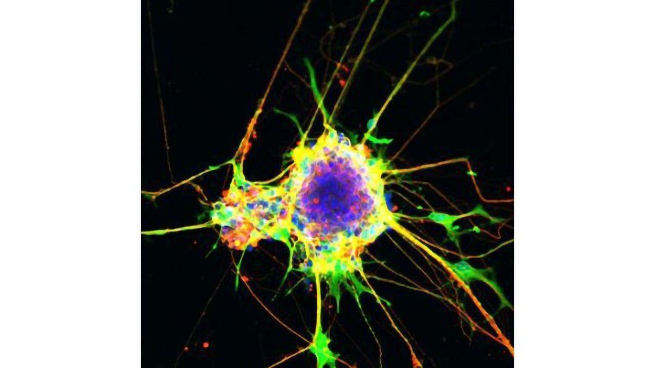 A Step Closer to Understanding Neurodevelopmental Disorders