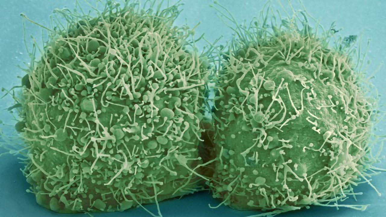 Divided HeLa Cells