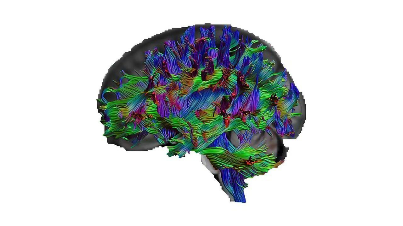 Got Great General Knowledge? Here's What Your Brain Looks Like