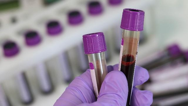 Personalised Liquid Biopsy Could Detect Return of Breast Cancer Nearly Eleven Months Earlier than Hospital Scans