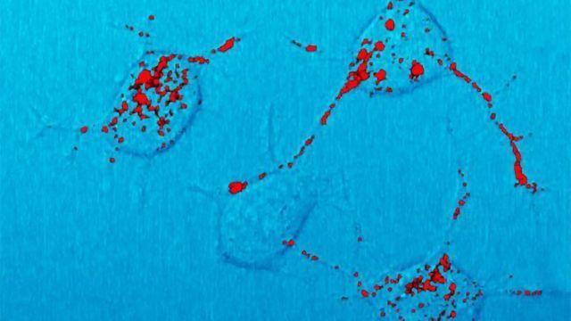 Antisense Therapy Slows Down Mouse Prion Disease