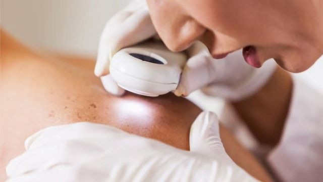 Skin Cancer: What Causes It and Who Is at Risk?