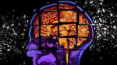 Data Model Predicts Alzheimer's Cognitive Decline