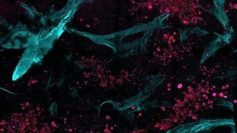 Spotting Cancer at the Molecular Level