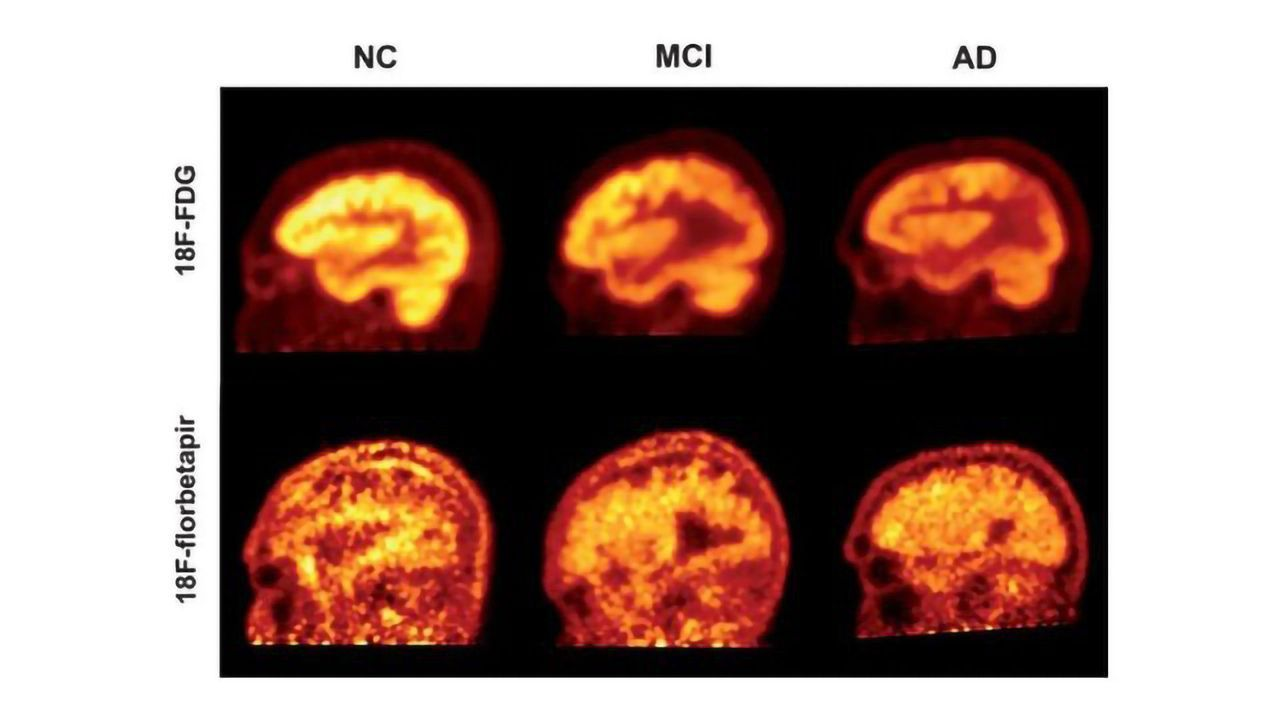 Amyloid PET Scans Say Little About Cognitive Function