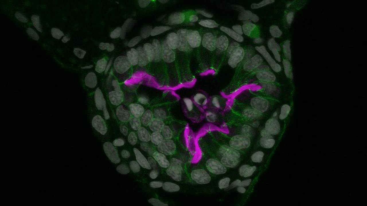 Gut Throws Cells Overboard When Chemical Insults Build Up