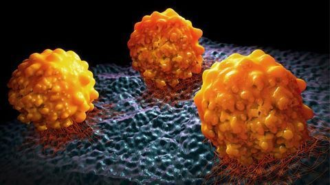 Promising Clinical Trial Results for Olaparib in Advanced Prostate Cancer