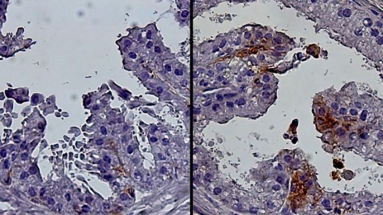 Progenitor Cells Linked to Age-related Prostate Growth