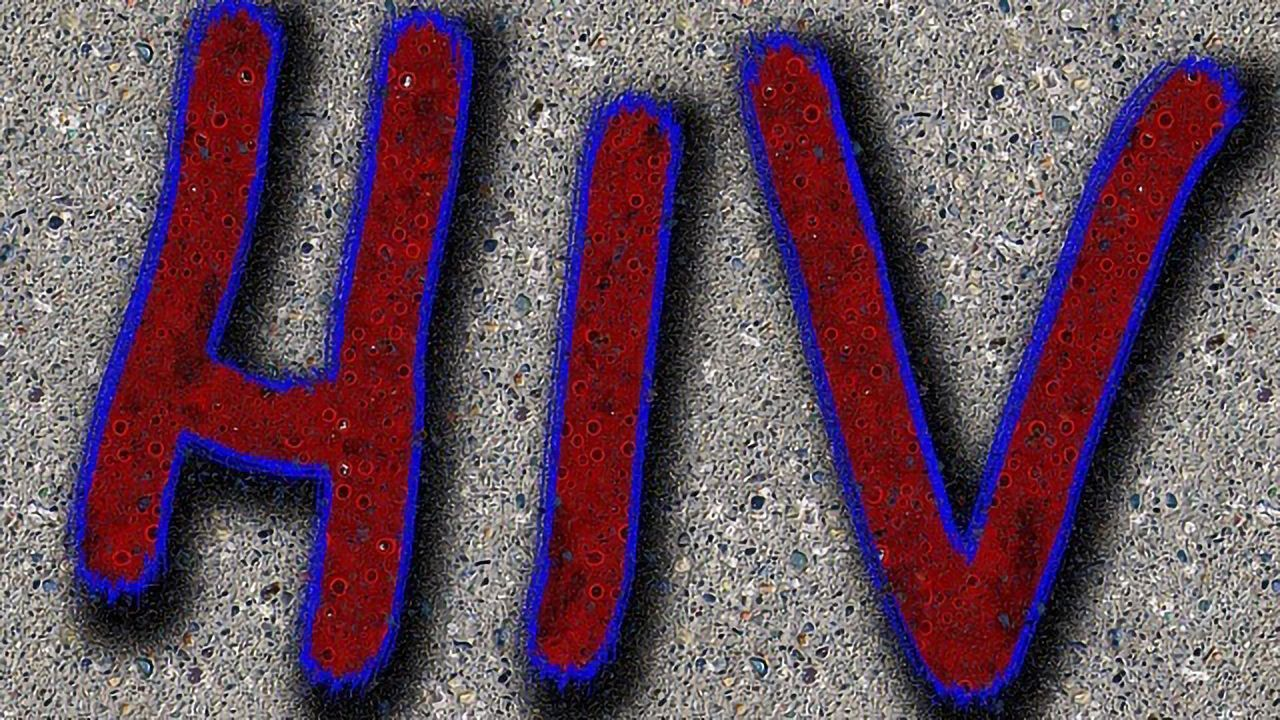 Living With HIV Increases Risk of Other Health Issues