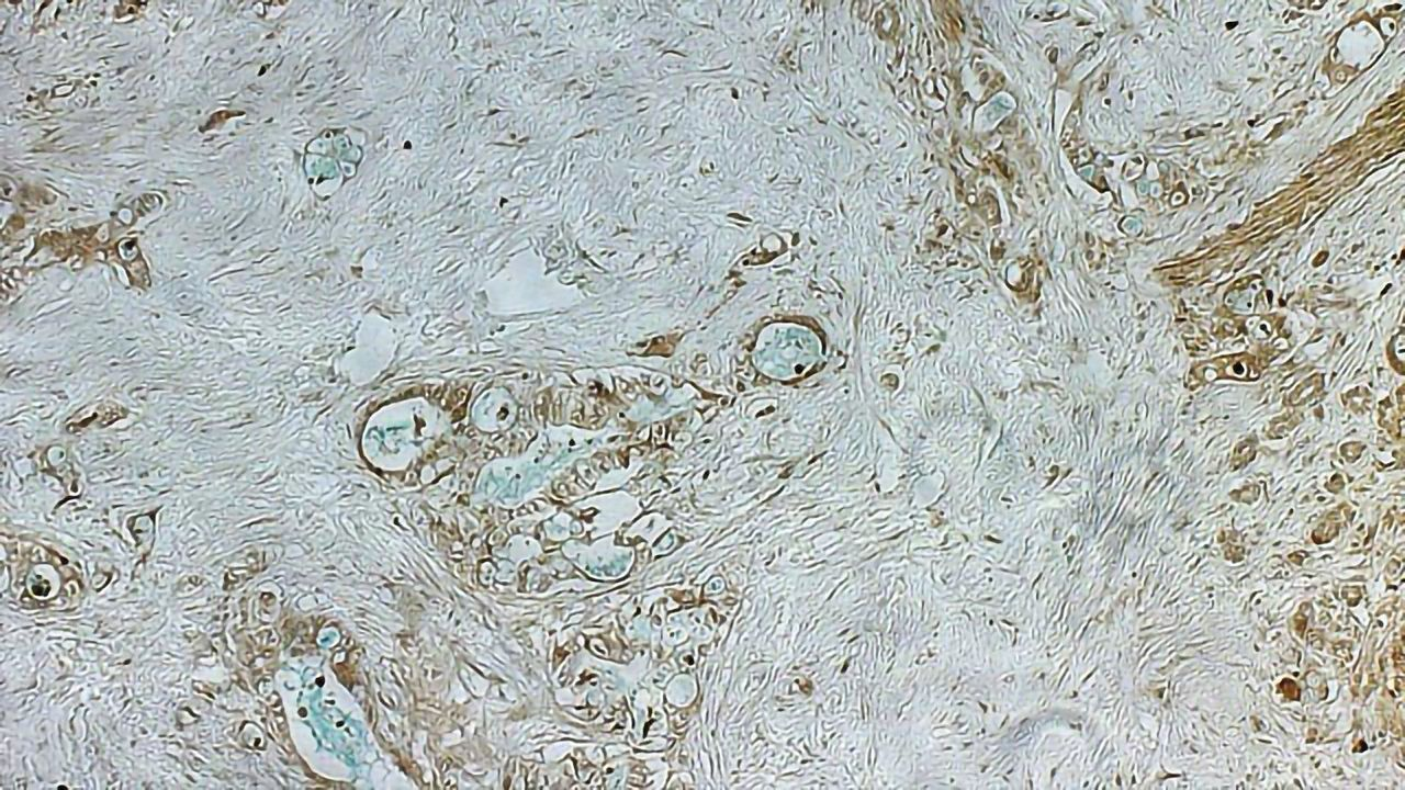 Rare, Inherited Gene Mutation Raises the Risk of Pancreatic Cancer