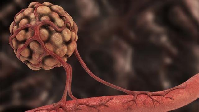 Angiogenesis dan Kanker: Seperti Apa Hubungannya?