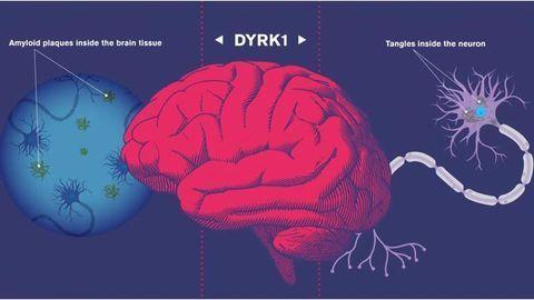 Drug Targets Early Instigator of Alzheimer's Disease
