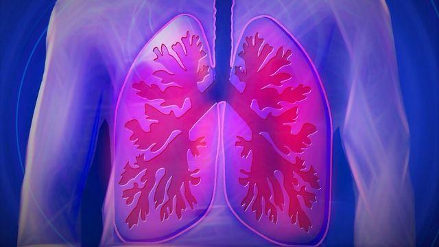 Advanced Test Detects Drug Resistant TB