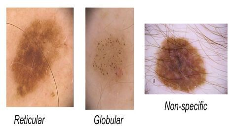 In Melanoma, Numbers Count