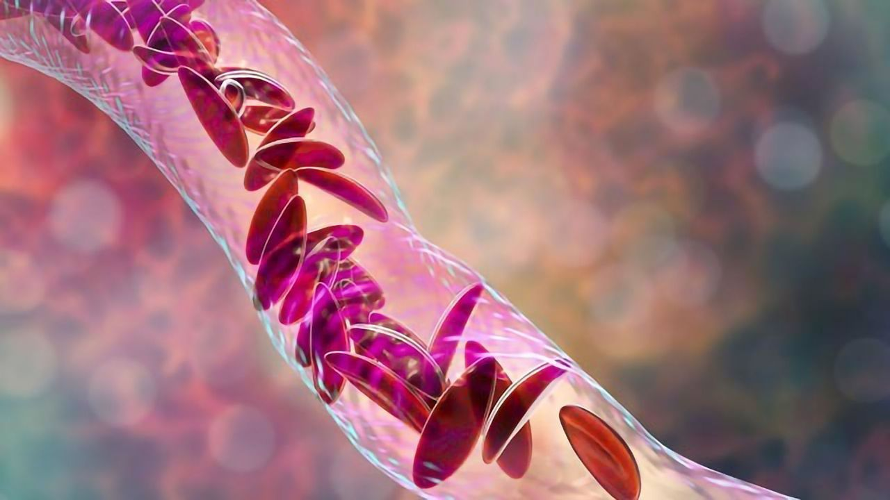 Therapeutic Gene Editing for Sickle Cell Disease