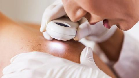 $1.7 Million Grant to Study Potential Skin Cancer Treatment