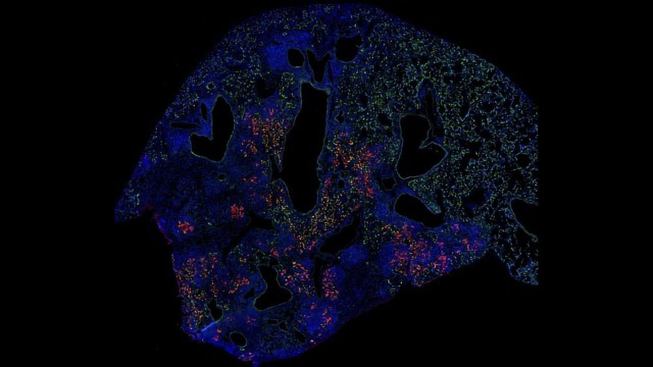 Lung Cell Transplant Boosts Healing After the Flu