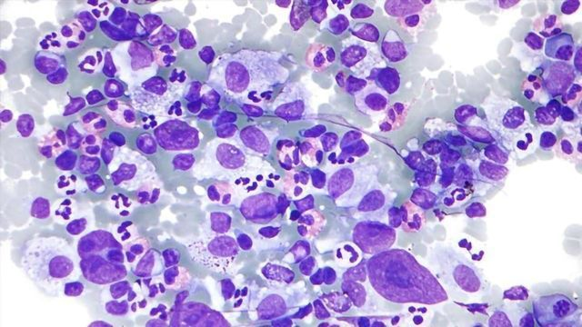First-degree Relatives of Blood Cancer Patients at Greater Risk