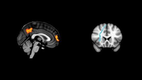 White Matter Connections Could Be the Key to Successful Brain Stimulation