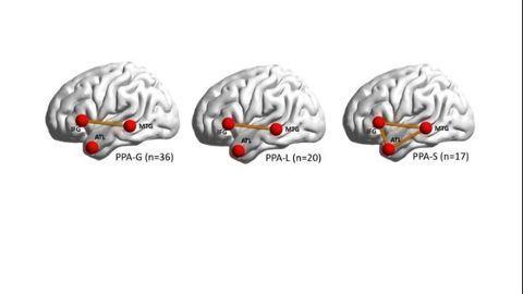 Dysfunctional Brain Networks Behind Speech-stealing Dementia Revealed