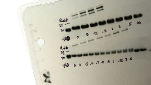 How To Choose the Right Western Blot Detection Method