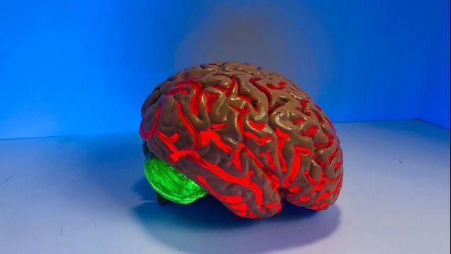 Alzheimer's Risk Gene Impairs Brain's Immune Cells