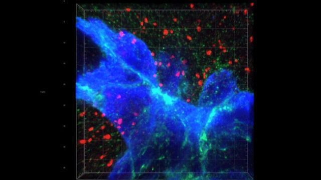 Cancer Metastasis – Moving From Breast to Brain
