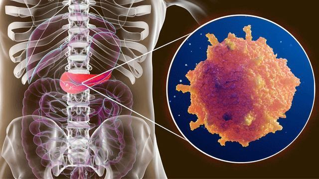 Making Chemotherapy More Effective Against Pancreatic Cancer