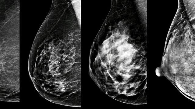 Breast Density: A Personal Biomarker of Cancer