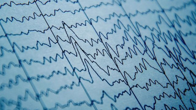 Brain Waves Prove Ineffective for Predicting Epileptic Seizures