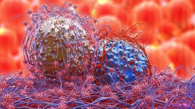 Understanding How Pancreatic Cancer Fuels Its Growth