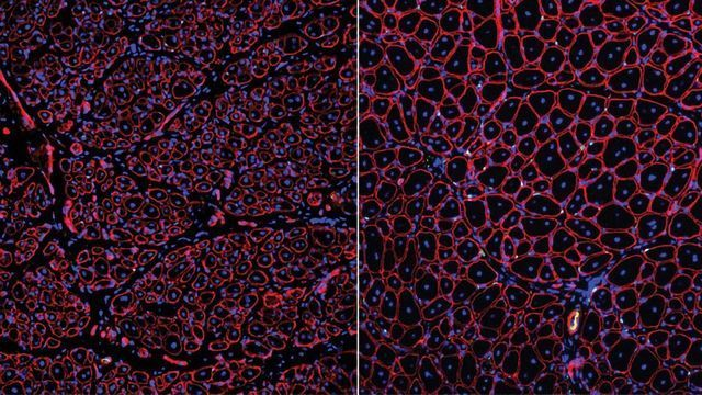 Culprit for Age-related Decline in Muscle Healing Uncovered