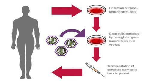 Improved Gene Therapy in Sickle Cell Disease