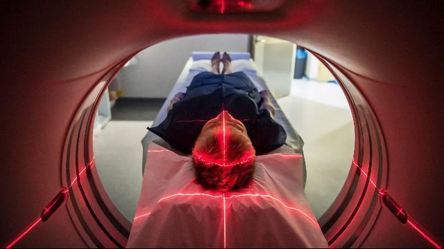 Are Automation and AI the Future of Brain Scan Analysis?