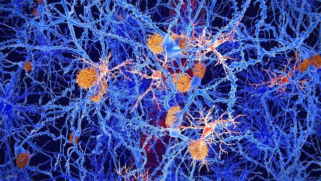 Fighting Neurodegeneration by Understanding Inflammation