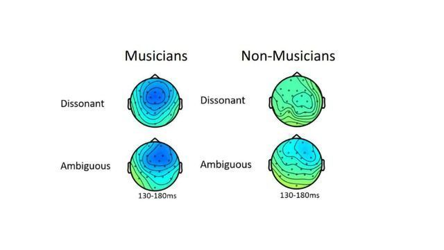 Cognitive Dissonance: Musicians' Brain React Differently to Inharmonious Sounds