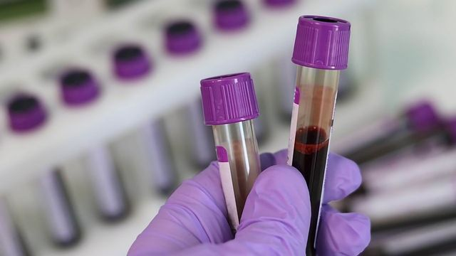 Changes Associated With Alzheimer's Disease Detectable in Blood Samples
