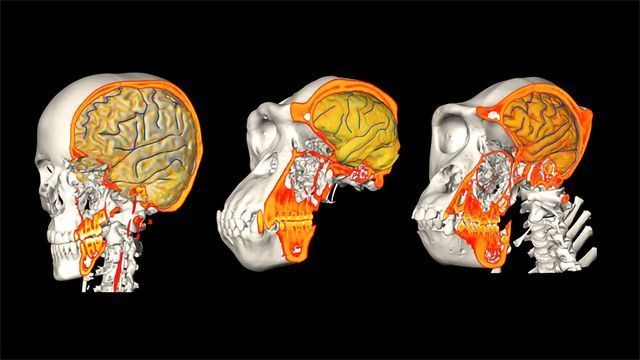 Why Are Human Brains So Big?
